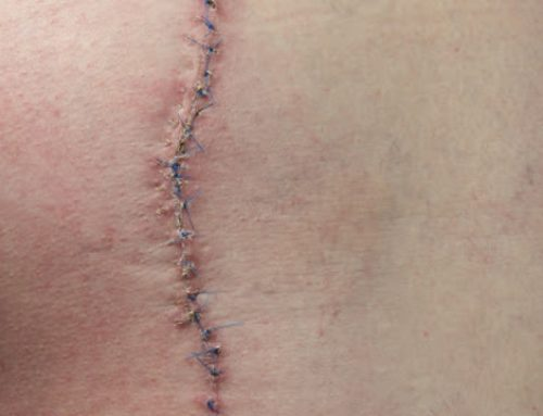 À seulement 17 ans, elle invente des fils de suture qui changent de couleur en cas d'infection