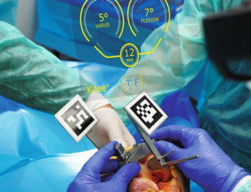 [Made in France] Pixee Medical assiste la chirurgie orthopédique
